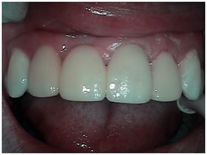 After picture of bridge treatment teeth