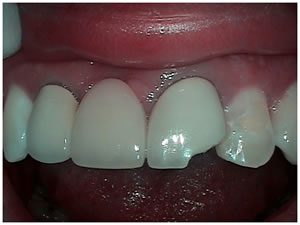 Before picture of front tooth before bridge treatment