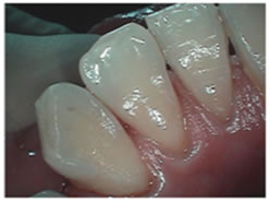 After picture of teeth cleaning treatment