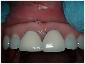 Before treatment picture of Crown