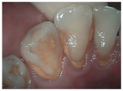Before picture of teeth cleaning treatment